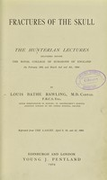 view Fractures of the skull : the Hunterian lectures delivered before the Royal College of Surgeons of England on February 29th and March 2nd and 4th, 1904 / by Louis Bathe Rawling.