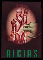 view Algias : Mio-Ina, medicación sinergica, antialgica y desensibilizante : vitamina B1 ...  / Laboratorios Vieta-Plasencia, S.A.